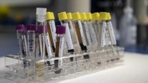 Coronavirus : trois médecins généralistes pensent avoir trouvé un possible remède